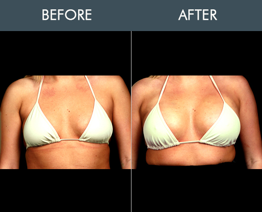 Naturalfill Breast Enhancement Before And After