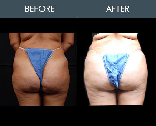 Naturalfill Buttocks Enhancement Results