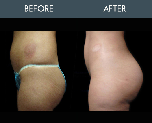 Before And After Naturalfill Buttocks Enhancement
