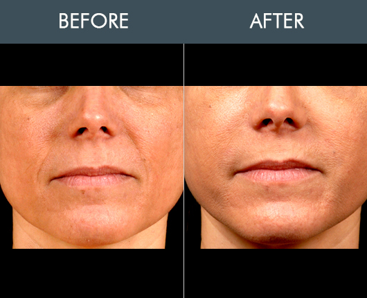 Naturalfill Facial Filler Results