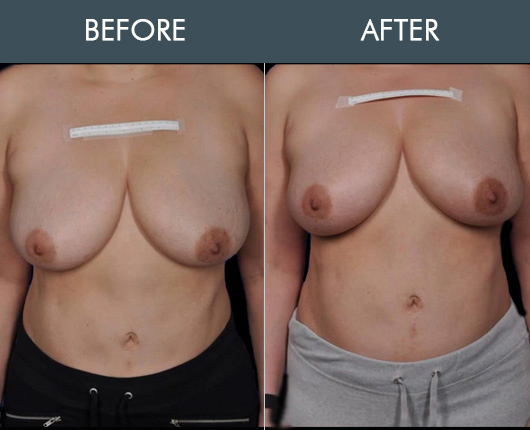 Thermibreast Before And After
