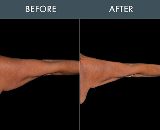 Bodytite Surgery For Arms Before And After