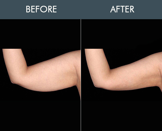 Bodytite For Arms Before And After