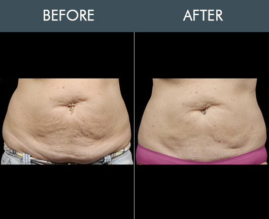 Before & After Aqualipo Surgery