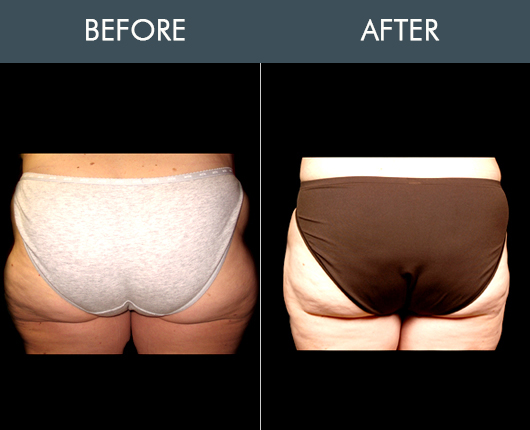 Aqualipo Before & After For Buttocks