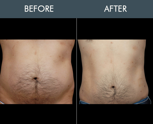 Before And After Aqualipo For Midsection