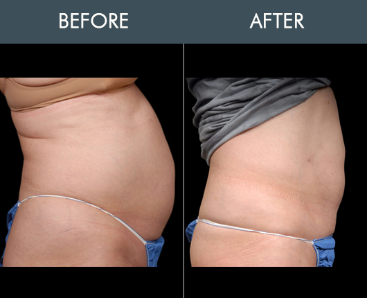 Aqualipo Before & After For Midsection