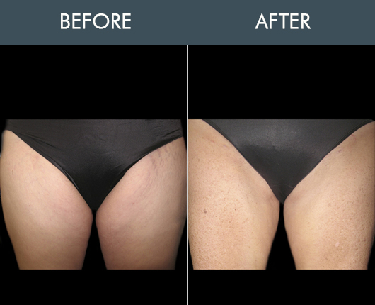 Before & After Aqualipo For Thighs