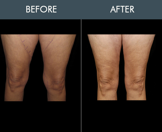 Aqualipo Before & After For Thighs