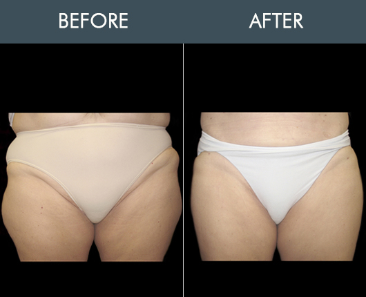 Aqualipo Before And After For Thighs