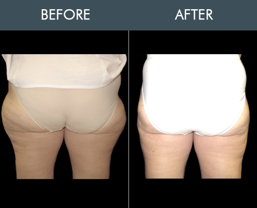 Before And After Aqualipo For Buttocks