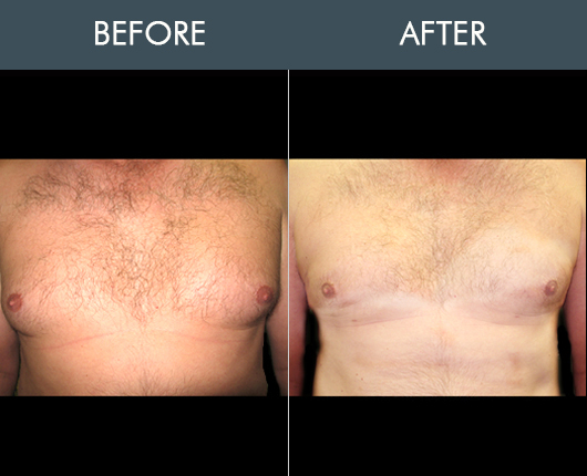 Before And After Aqualipo For Male Breasts