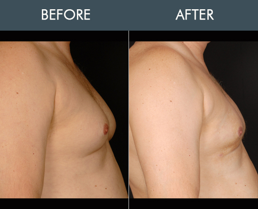 Aqualipo Before & After For Male Breasts