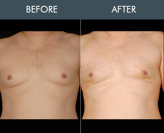 Aqualipo Before And After For Male Breasts