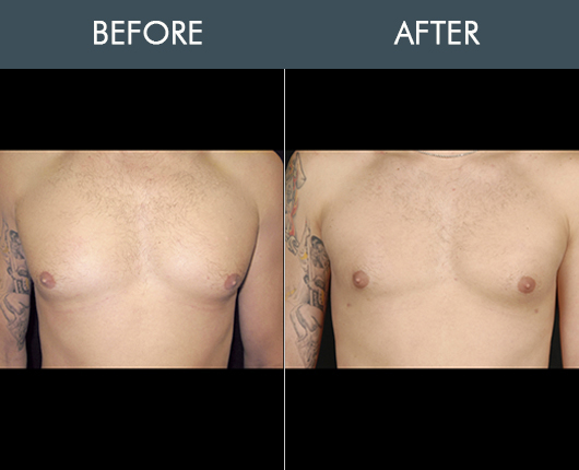 Aqualipo Before And After For Chest