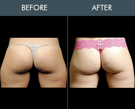 Aqualipo Before And After For Buttocks
