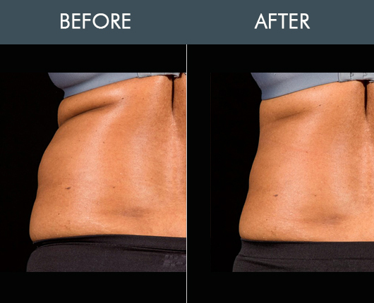Before And After Sculpsure