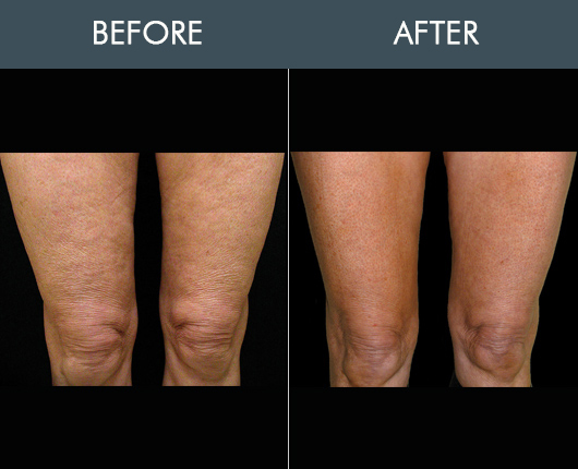 Thermage Body Before & After
