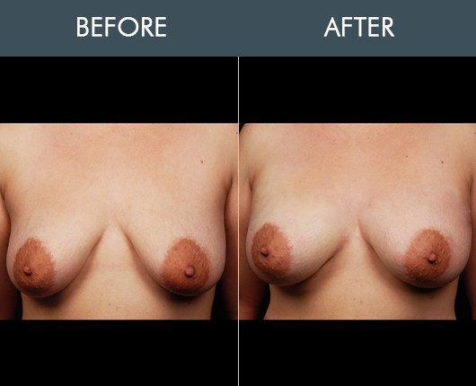 Naturalfill Breast Enhancement Results