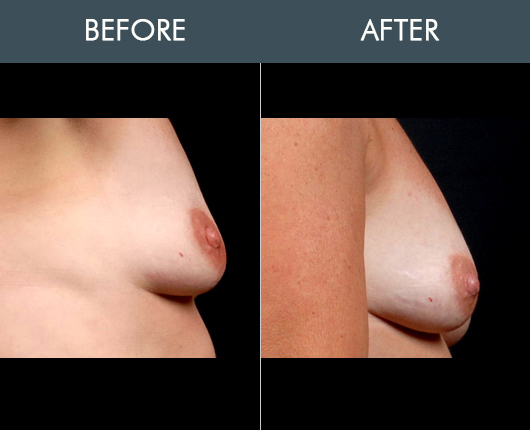 Naturalfill Breast Before And After