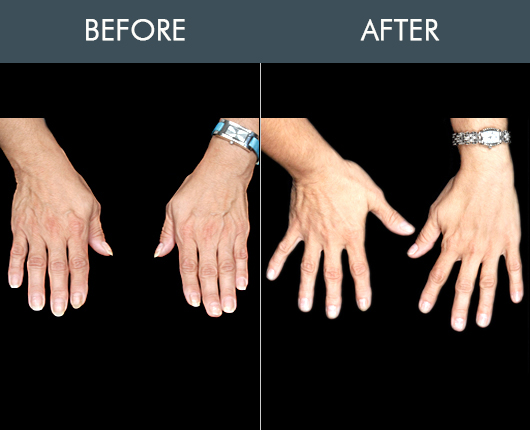 Naturalfill Hand Rejuvenation Before & After