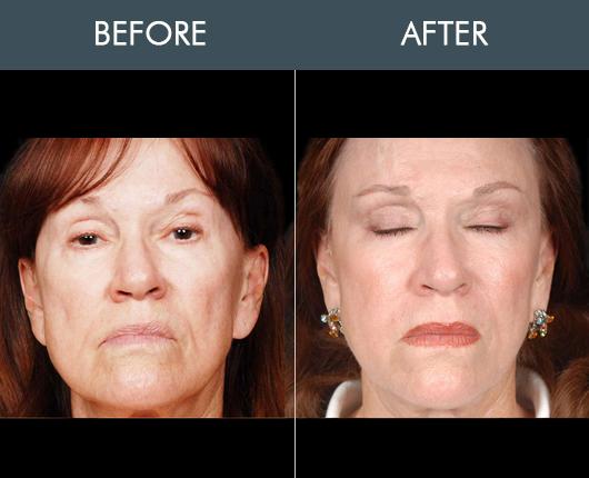 Naturalfill Facial Filler Before & After