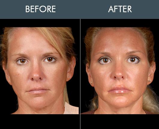 Before & After Naturalfill Facial Filler
