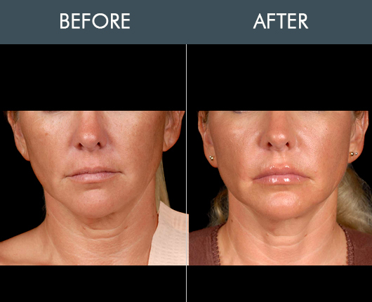 Before And After Naturalfill Facial Filler