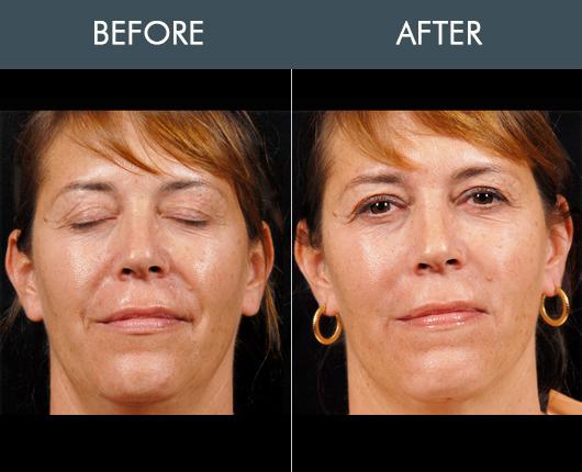 Naturalfill Face Results