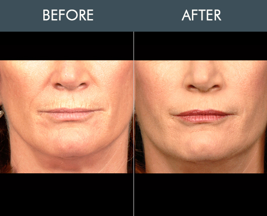 Naturalfill For Face Before & After