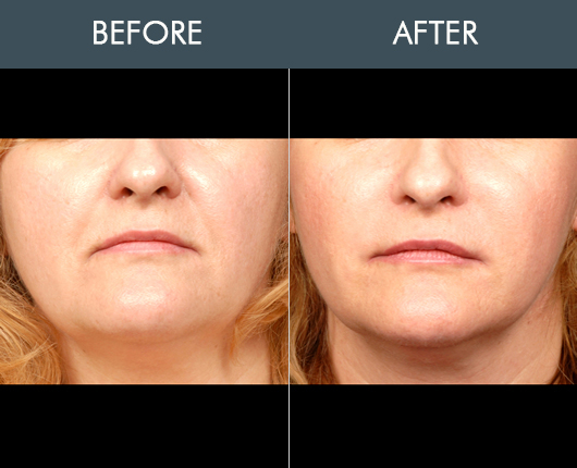 Naturalfill For Face Results