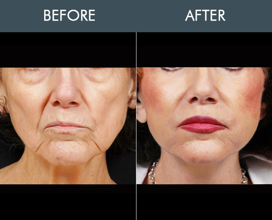 Before And After Naturalfill For Face