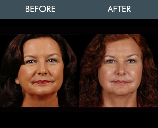 Naturalfill Face Filler Before & After