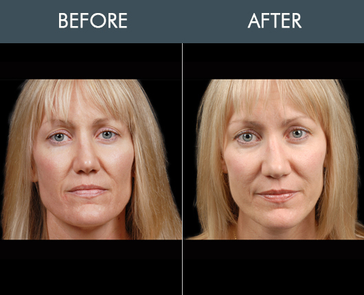 Naturalfill Face Filler Before And After