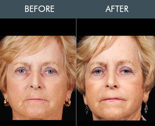Naturalfill Face Filler Results