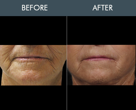 Before & After Naturalfill Face Filler