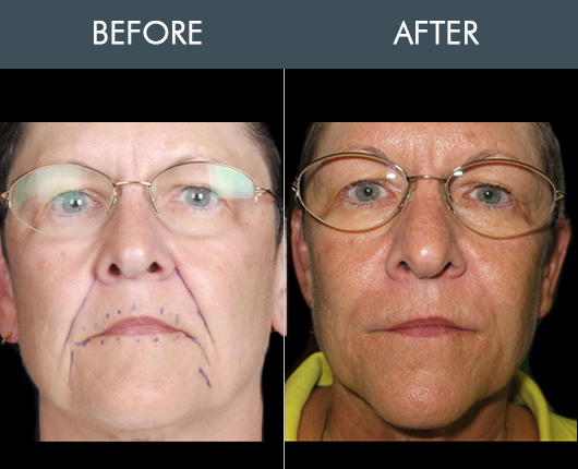 Before And After Naturalfill Face Filler