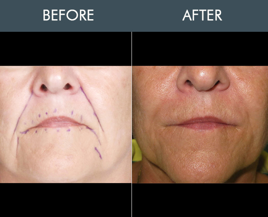 Naturalfill Facial Rejuvenation Before And After