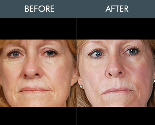 Naturalfill Facial Rejuvenation Before & After