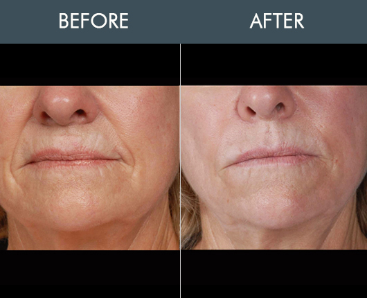 Naturalfill Facial Rejuvenation Results