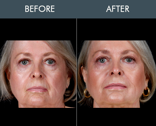 Before And After Naturalfill Facial Rejuvenation