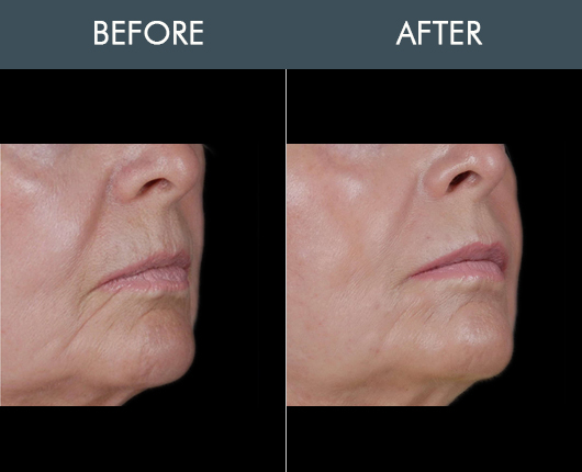 Before & After Naturalfill Facial Rejuvenation