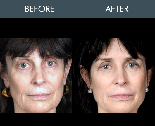 Naturalfill Facial Enhancement Before And After
