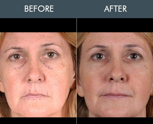Naturalfill Facial Enhancement Before & After