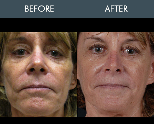 Naturalfill Facial Enhancement Results
