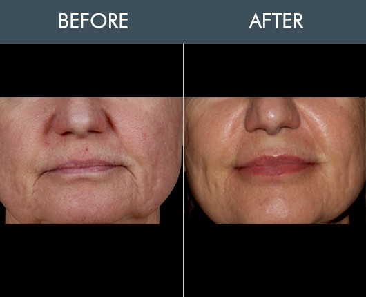 Before And After Naturalfill Facial Enhancement