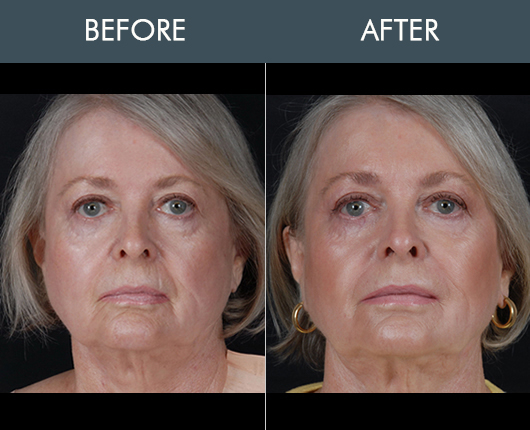 Naturalfill Facial Fat Transfer Before And After