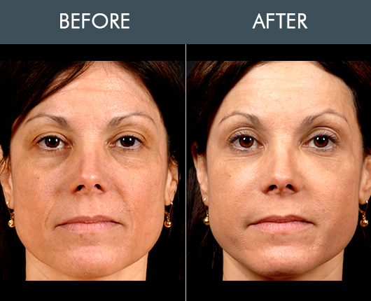Naturalfill Facial Fat Transfer Before & After