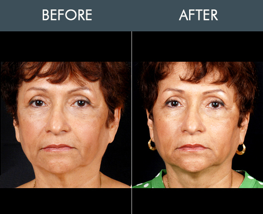 Before And After Naturalfill Facial Fat Transfer