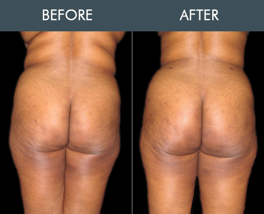 Naturalfill Buttocks Enhancement Before & After